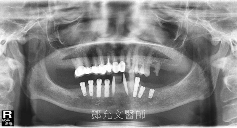 第一次及第二次人工植牙(人工牙根植體植入手術)後X光片(植牙手術後)