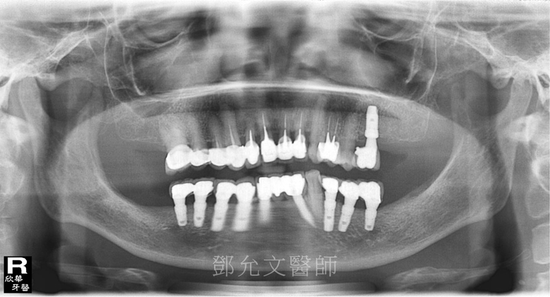 人工植牙(人工牙根植體植入手術)後 裝戴義齒X光片(植牙完成)