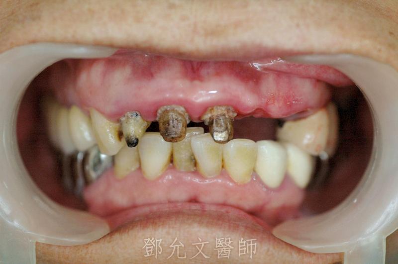 舊義齒拆除後口內照(正面觀)