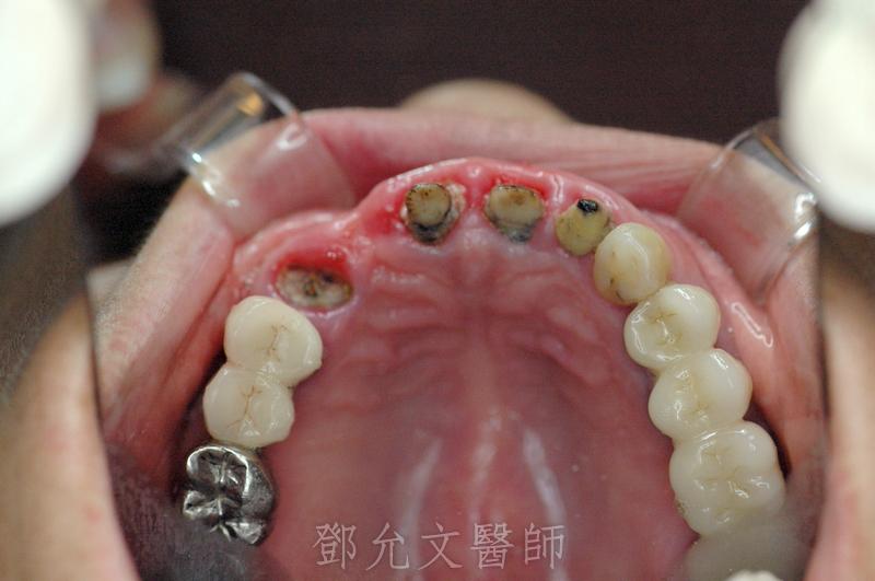 舊義齒拆除後口內照(咬合面觀)