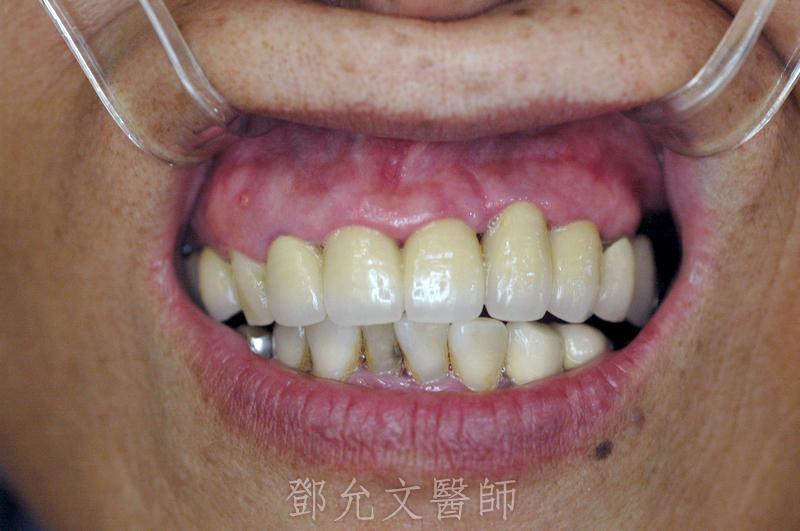 植牙手術前口內照