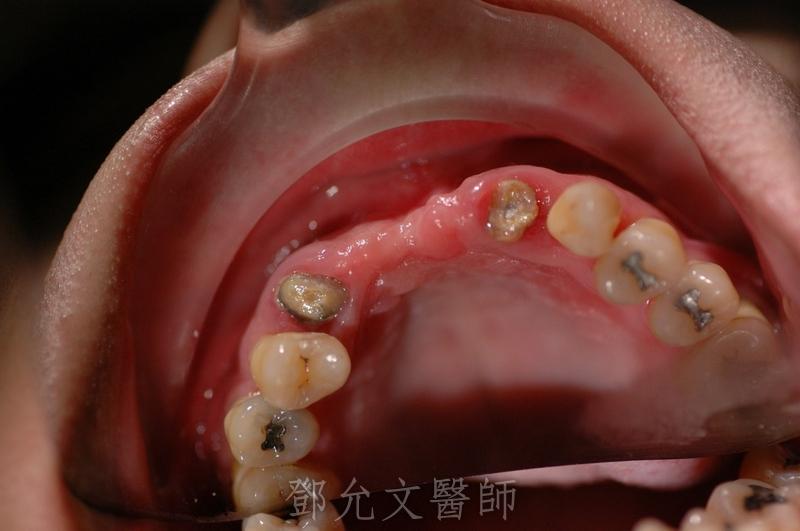 植牙手術前口內照(咬合面觀)
