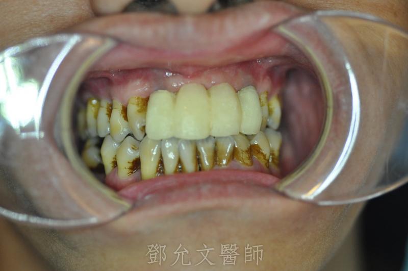 植牙手術後裝上臨時假牙