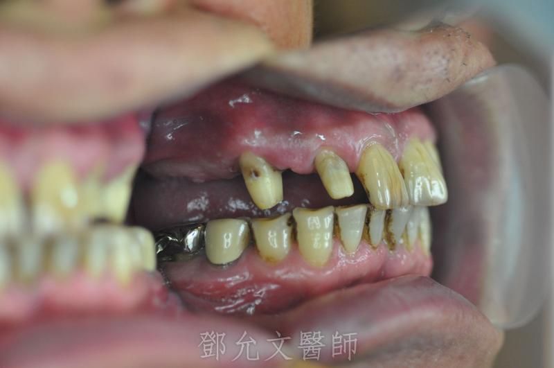 植牙手術前口內照(側面觀)