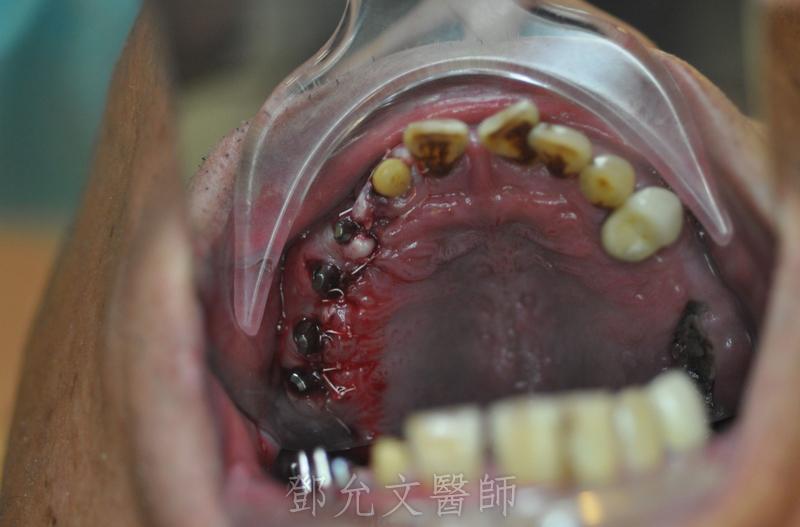 植牙手術完成,傷口縫合口內觀(側面觀)