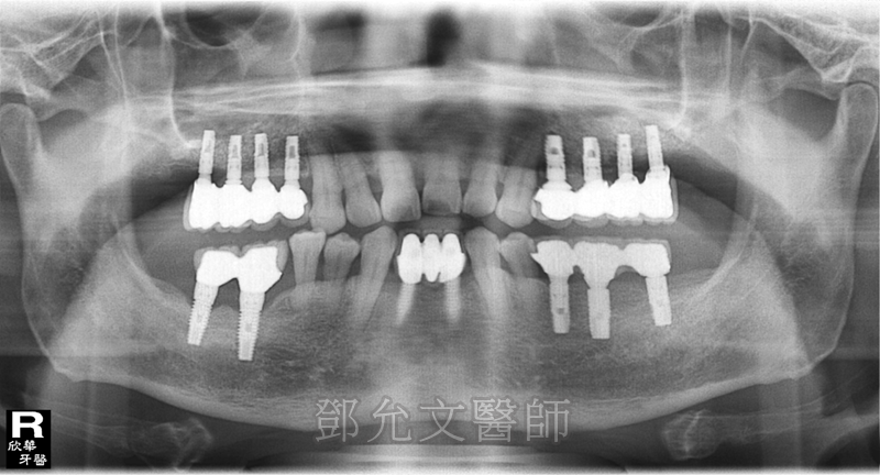植牙完成,共裝戴十四顆固定義齒(上八下六)
